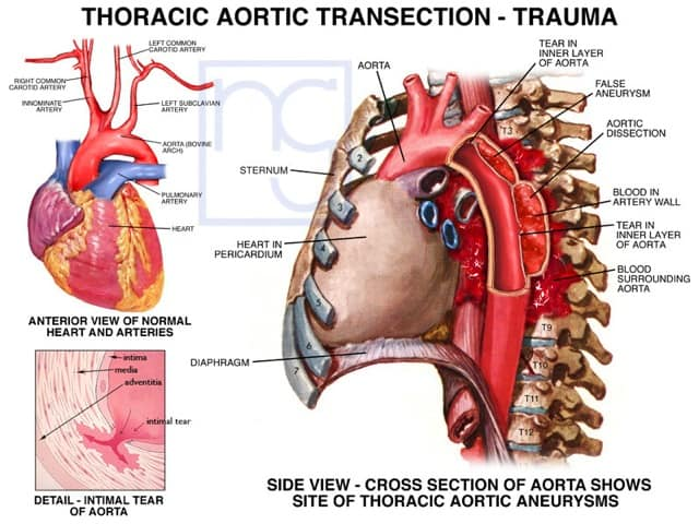 San Diego Aorta Trauma Lawyer