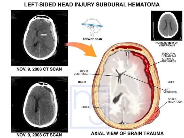 San Diego Brain Injury Lawyer