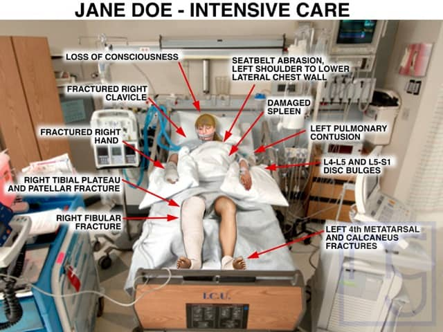 San Diego Intensive Care Unit Injury Attorney