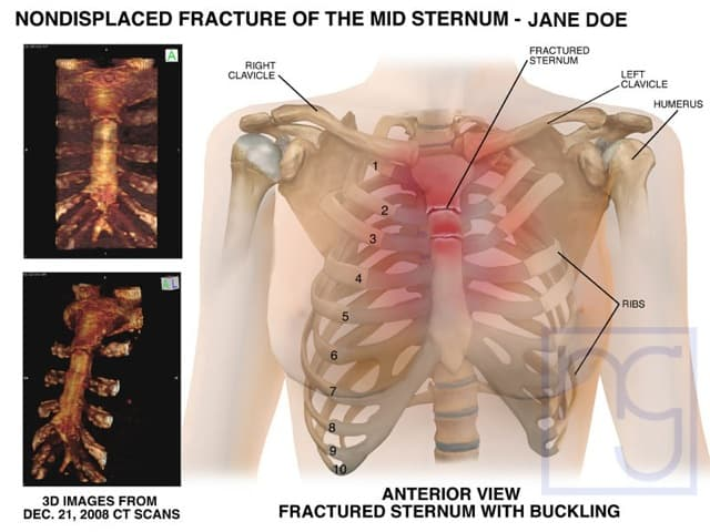 San Diego Sternum Fracture Injury Attorney