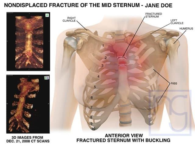 San Diego Sternum Fracture Injury Attorney