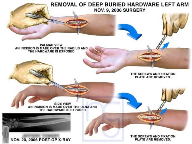 San Diego Internal Hardware Wrist Removal Lawyer