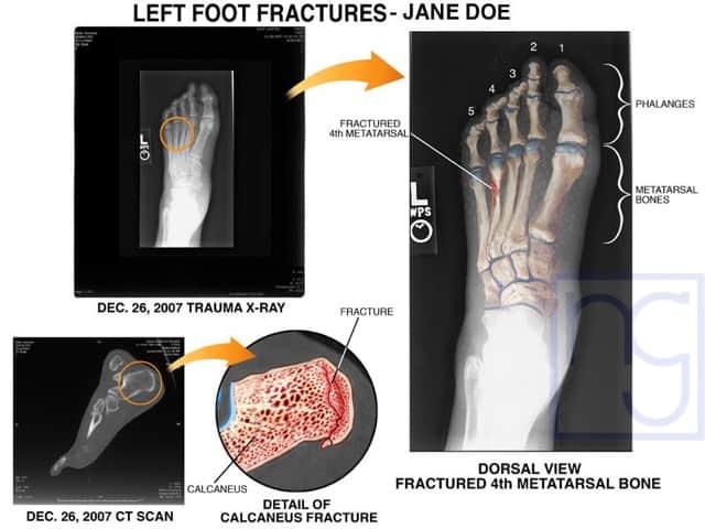San Diego Trauma Fractured Left Foot Injury Attorney