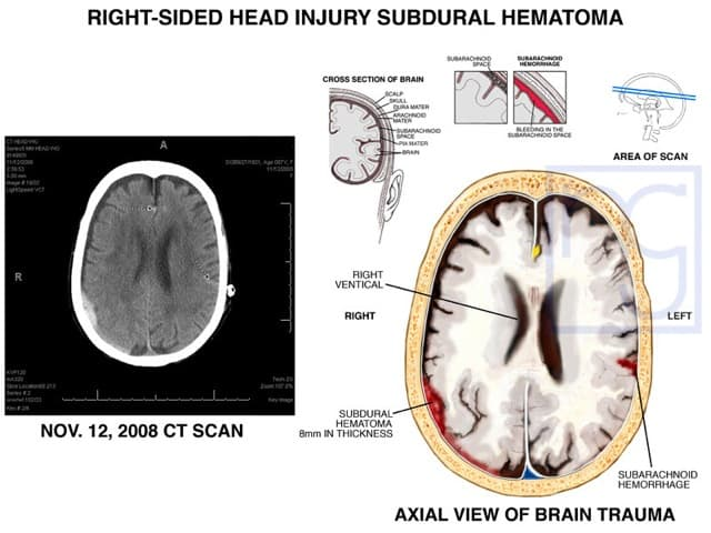 San Diego Brain Hematoma Injury Attorney