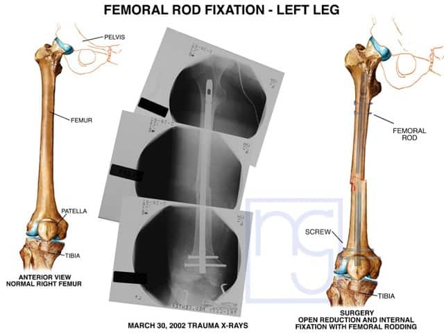 San Diego Femoral Rod Fixation Injury Lawyer