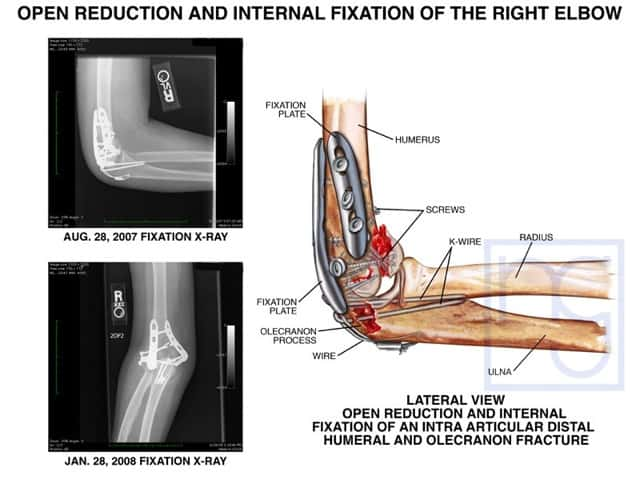 San Diego Fractured Elbow Fixation Attorney