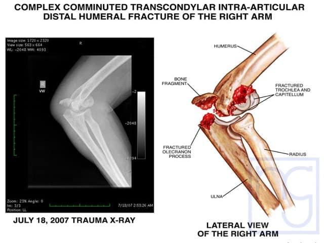 San Diego Broken Elbow Injury Attorney