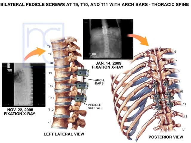 San Diego Medical Screws Thoracic Spine Fracture Internal Fixation Injury Lawyer